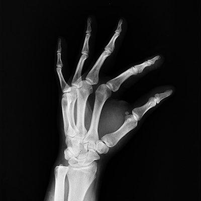 x-ray-1704854_640